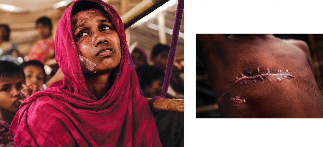 The physical evidence of atrocities is overwhelming among survivors in the refugee camps. Momtaz Begum (left) was treated for burns to her face and body. Seven year old Mohammad Shohail was shot in the chest. Image by Patrick Brown/Panos Pictures/UNICEF. Bangladesh, 2017.