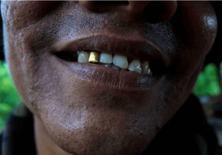 Manuel Álvarez (not his real name) shows off his golden tooth. He mined the gold himself. Image by by Bram Ebus. Venezuela, 2017.